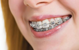 Restaurarea dentara: ce presupune si cum se efectueaza